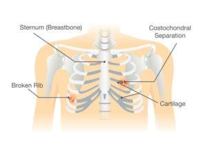 Broken rib symptoms