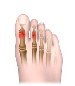 Broken toe healing