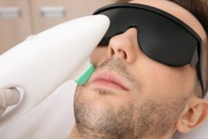 Laser Hair Removal Burns Treatment Causes Symptoms Diagnosis