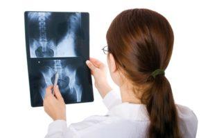 Broken coccyx treatment