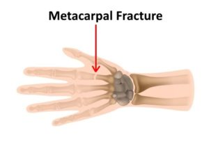 Fractured metacarpal